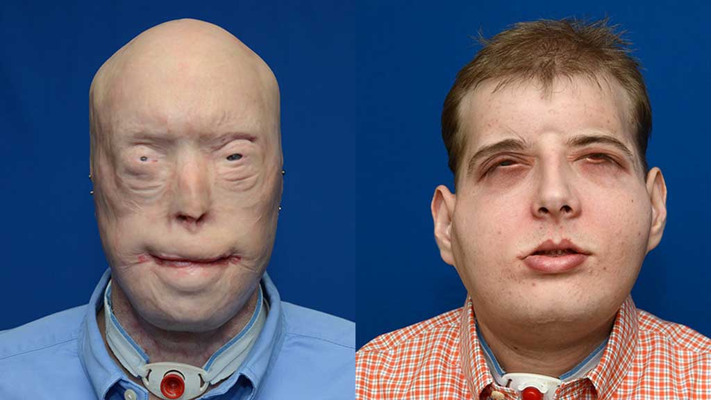 This combination photo provided by the NYU Langone Medical Center shows face transplant patient Patrick Hardison before (L) and after his surgery. (AFP)