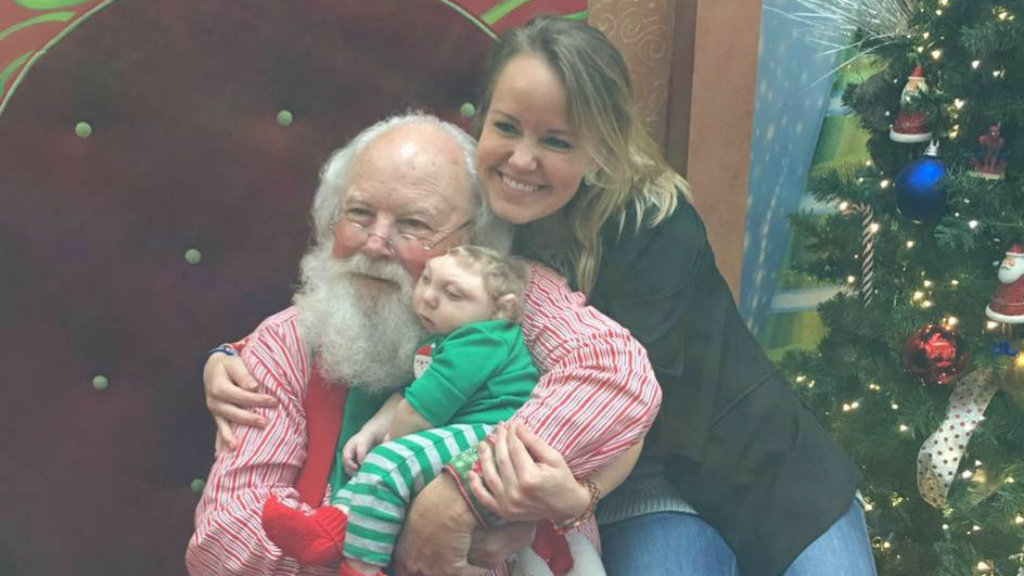 US toddler with rare brain malformation meets Santa