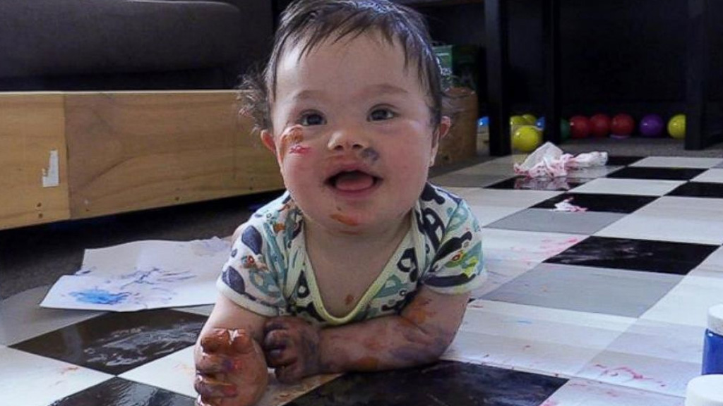 Couple who almost divorced after birth of baby with Down syndrome can't imagine life without him