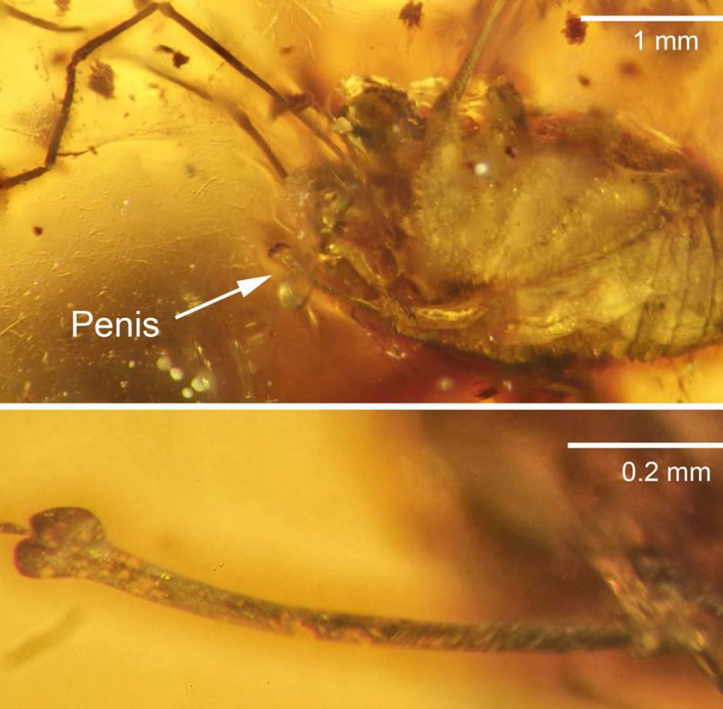 A close-up of the arachnids penis.  (Jason Dunlop/ The Science Of Nature Journal)