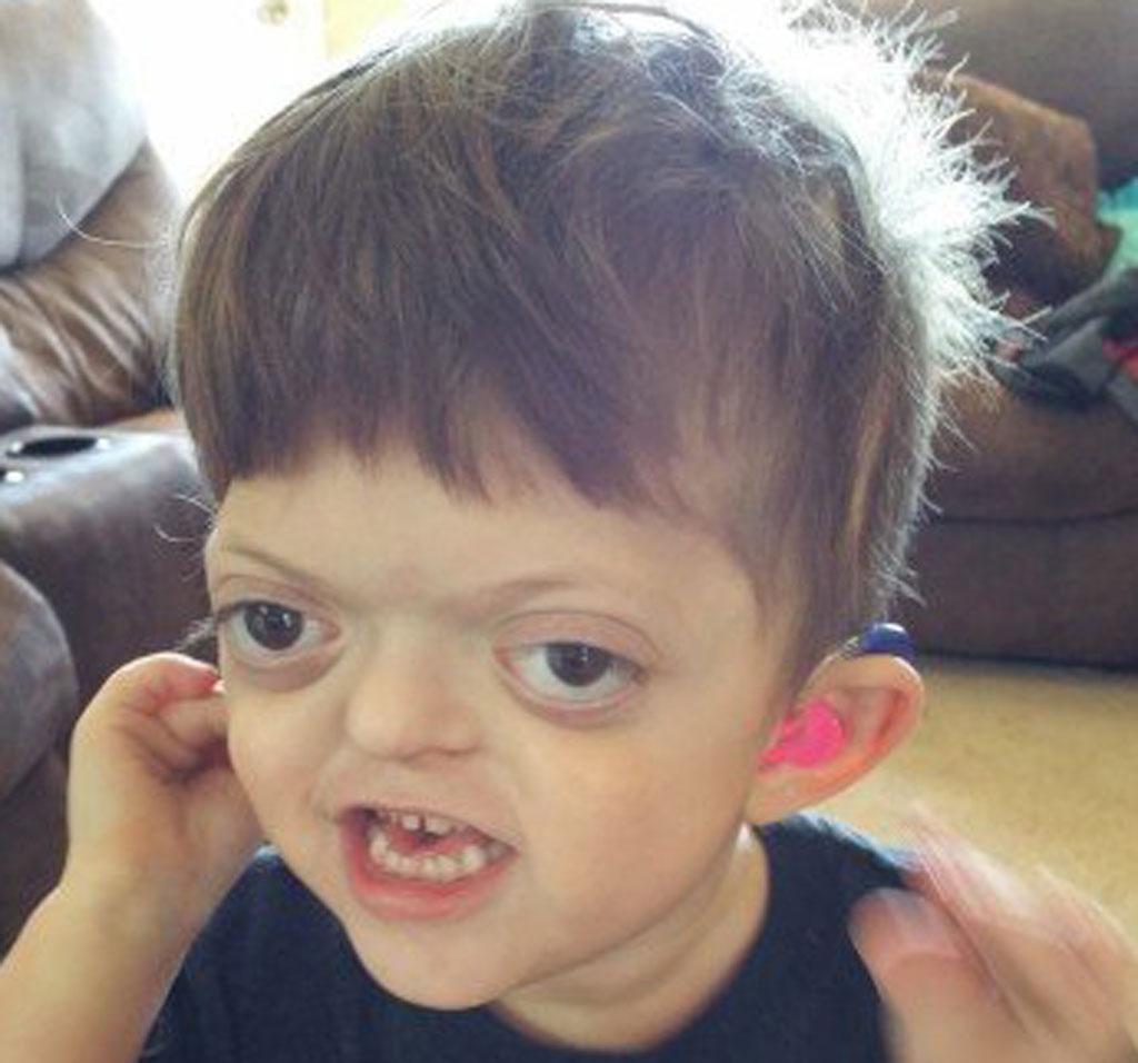 AliceAnn Meyer writes a blog on her sons condition. (AliceAnn Meyer)