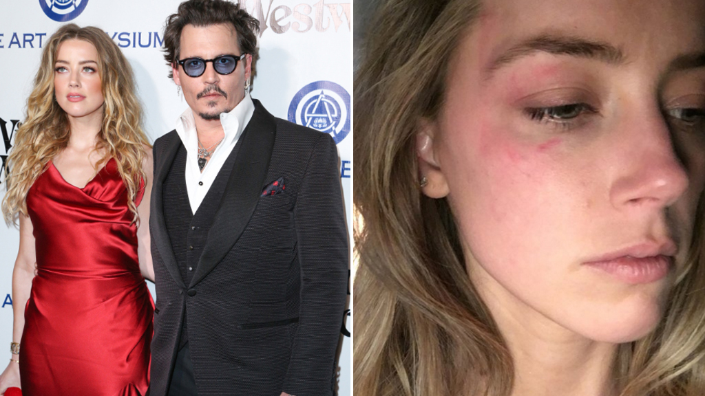 Johnny Depp and Amber Heard (left), and Amber Heard's alleged abuse (right).