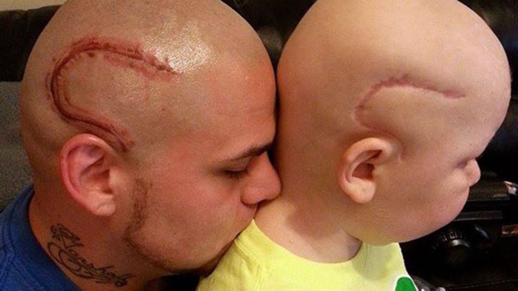 US father gets head tattooed to mimic son's cancer scar