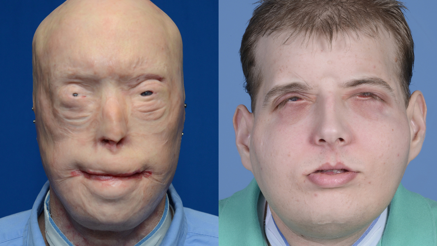 Patrick Hardison pictured before and after his surgery. (AAP)