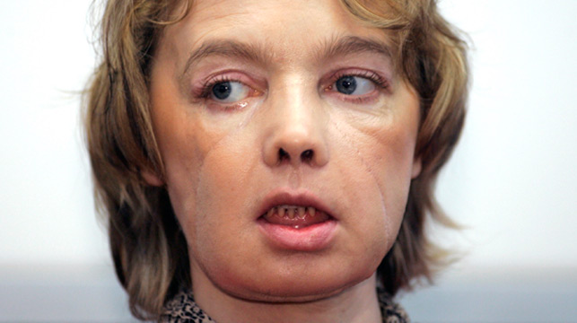 Recipient of world's first face transplant, Isabelle Dinoire, dies