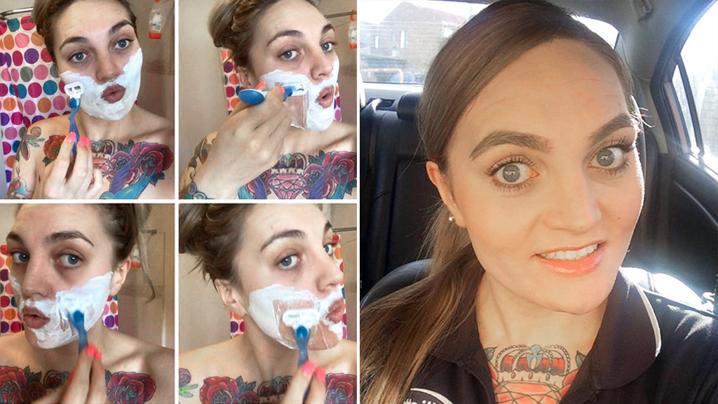 New Zealand woman with facial hair opens up about her incurable condition