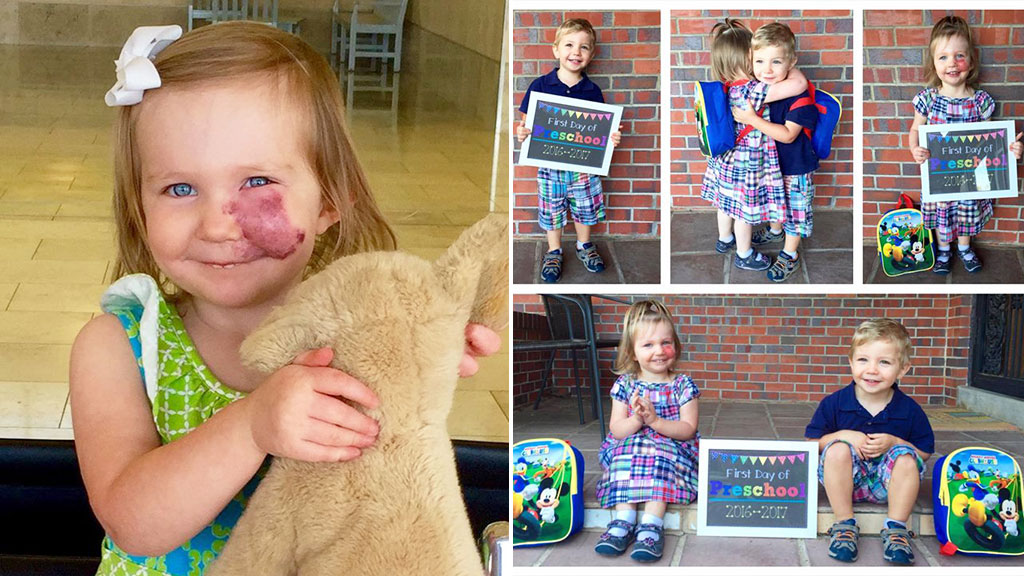 Toddler with facial birthmark uses unwelcome attention to educate others