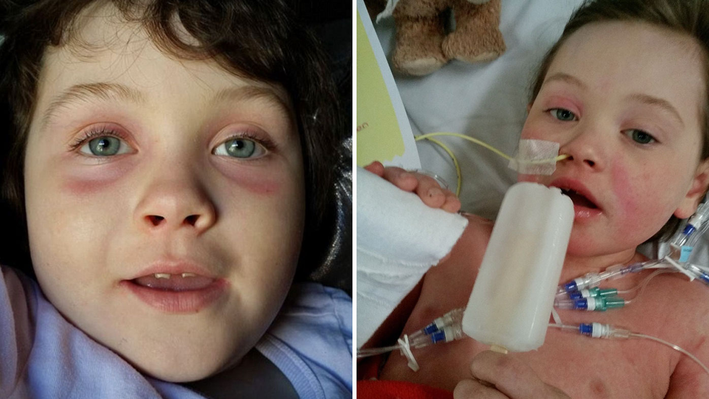 Ivy's family has been told her best chance of survival is to go to the US for costly treatment.