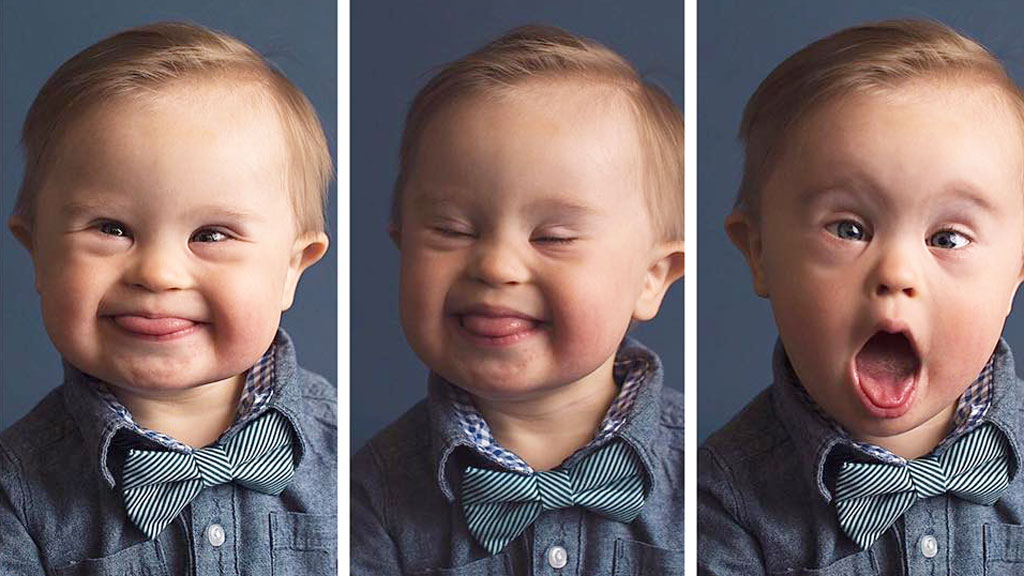 Boy with Down syndrome stars in photoshoot after casting call rejection