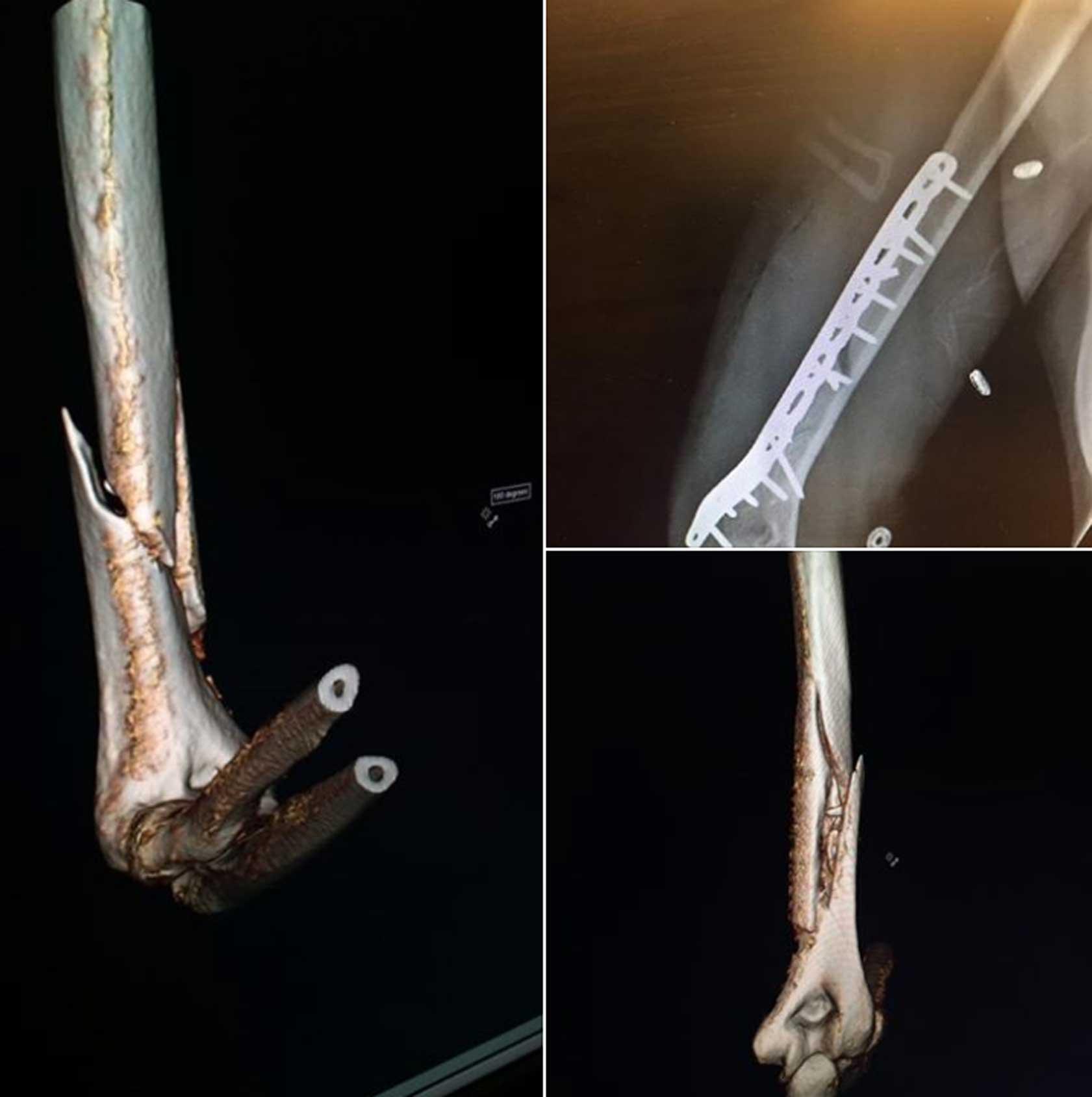 Vonn shows off gruesome injury