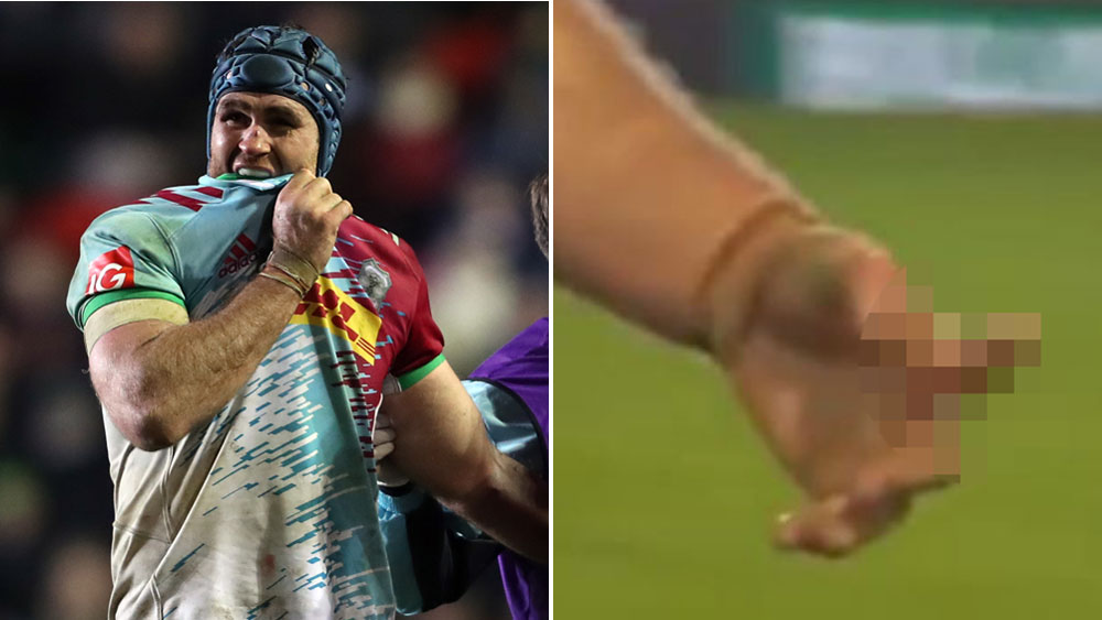 Horwill suffers horrific finger injury in England