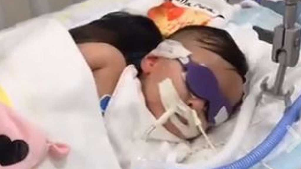 One-year-old Marwa in a medically-induced coma. (Facebook)