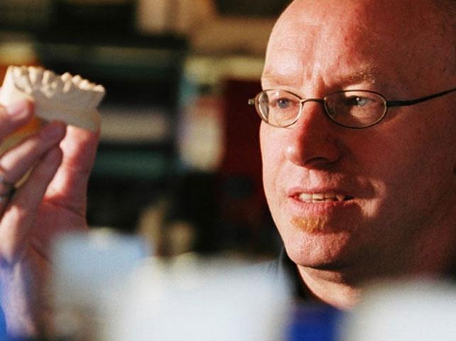 End of fillings on horizon as Alzheimer's drug repairs teeth