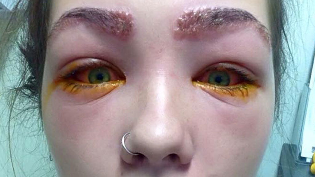 Girl Almost Left Blind After Trying To Tint Her Own Eyebrows 9honey