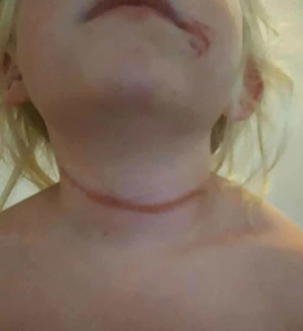 Marley Oster was left with a scar on her neck. (Supplied)
