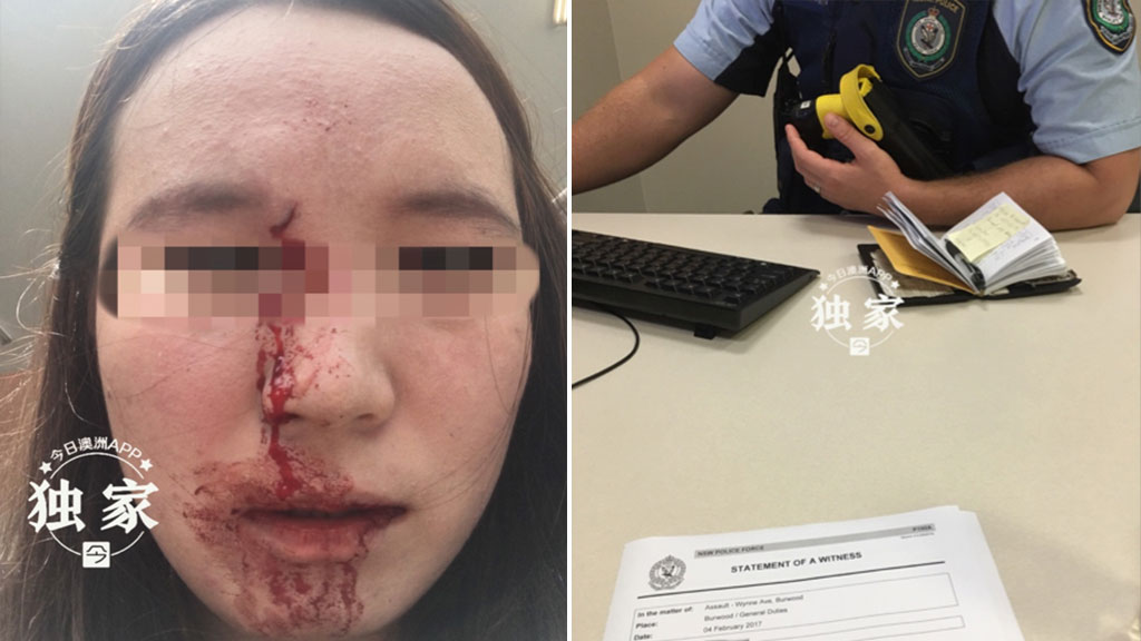 Chinese Australian 'punched in the face' in racist attack on Sydney street