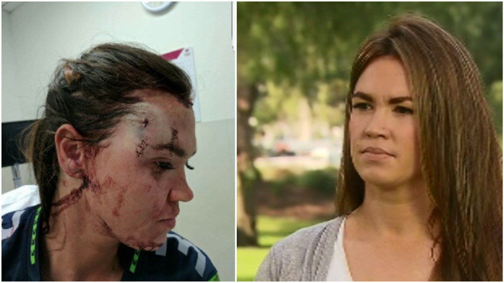 Jessica Hardiman was glassed at a Geelong pub in November last year. (9NEWS)