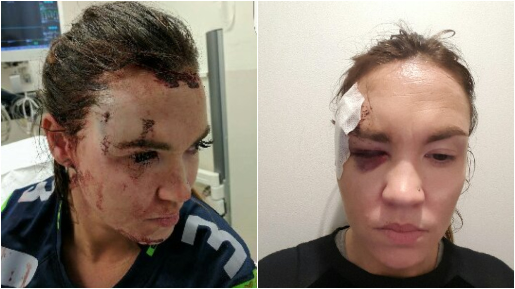 Ms Hardiman required nine stitches to her forehead. (9NEWS)