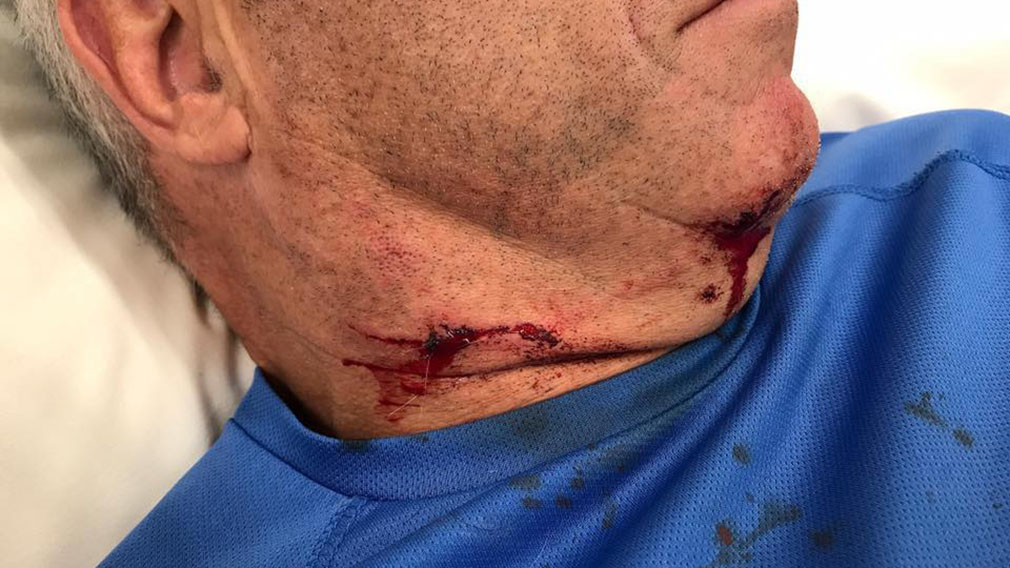 Cameron McIntyre has received over 30 stitches because of the attack. (Facebook)