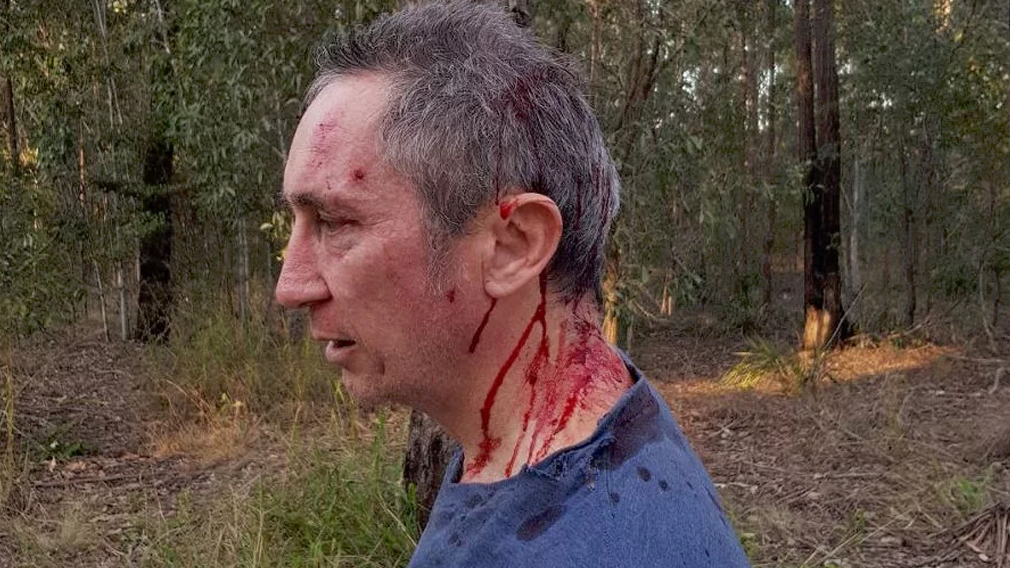 Pisasale opponent Jim Dodrill attacked in Ipswich bushland