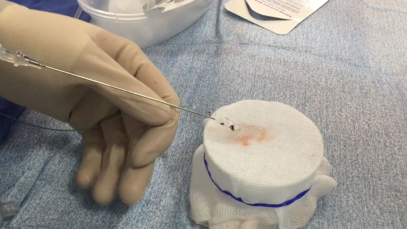 The blood clot is removed from the stroke victim's brain.