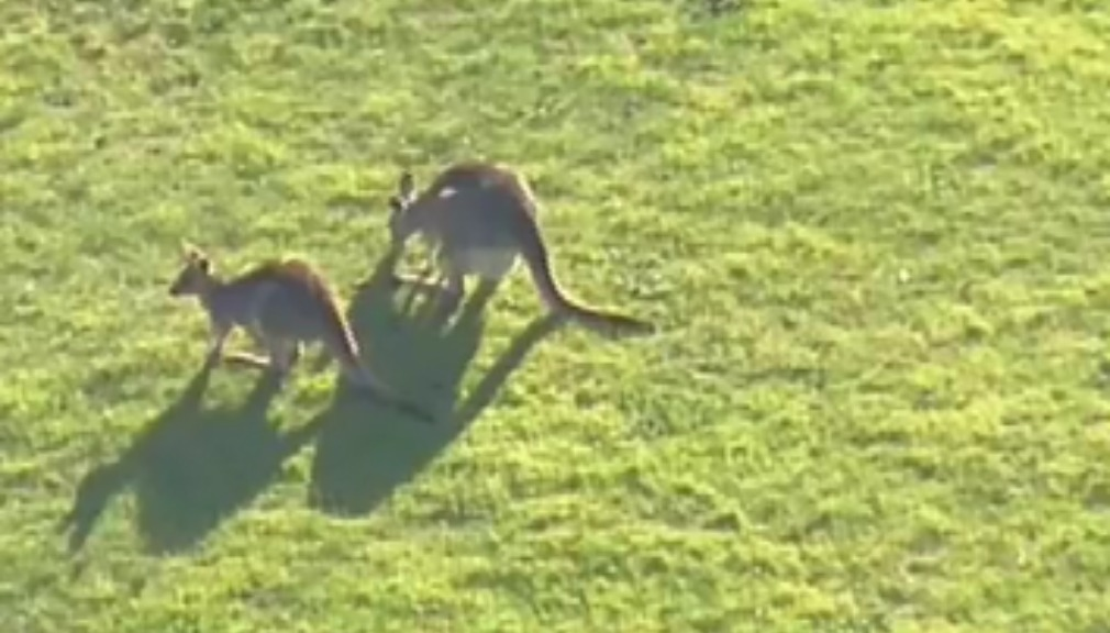 The child suffered facial lacerations as a result of the kangaroo attack. (9NEWS)