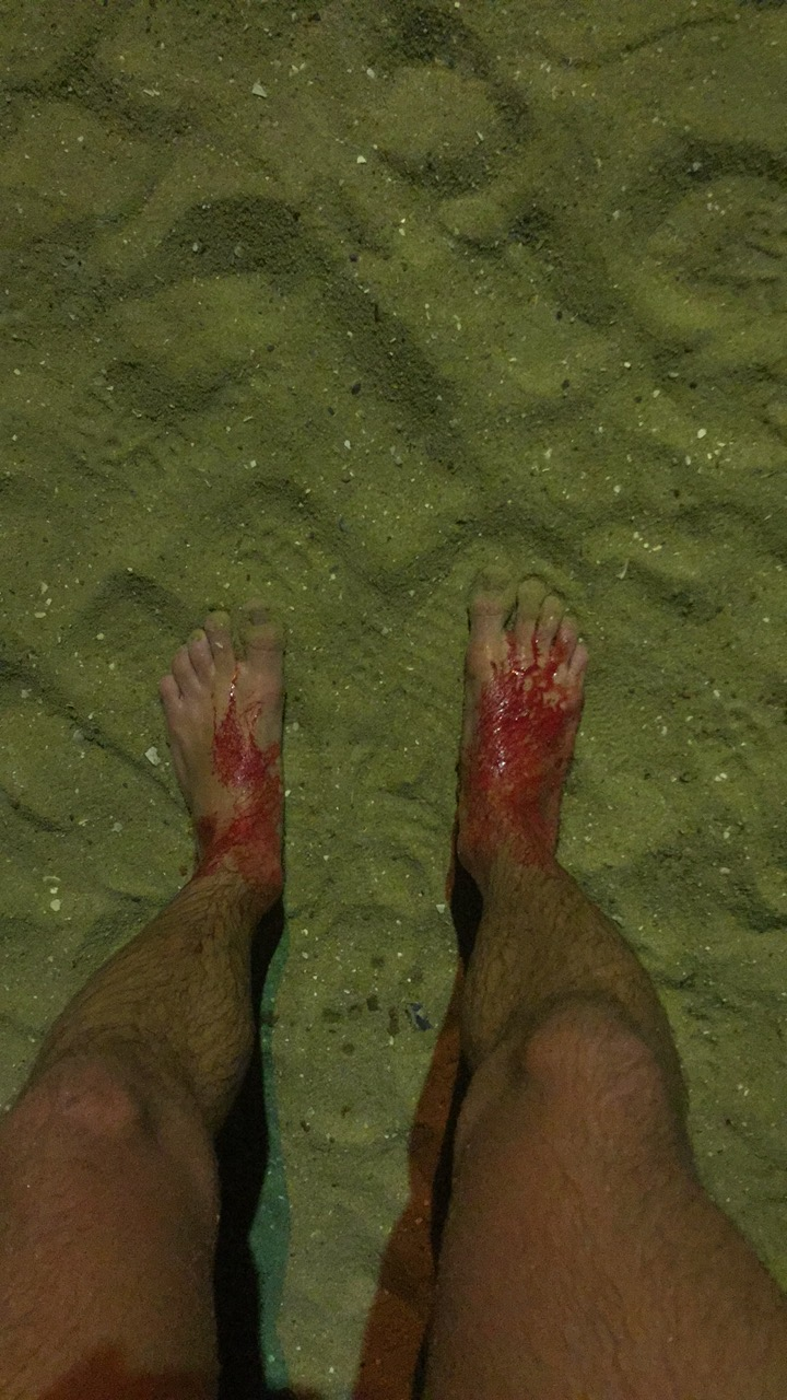 Sam initially thought he had sand on his feet. (AAP)