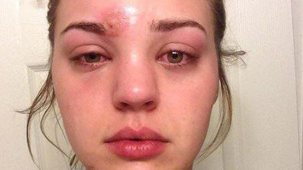 Woman contracts 'traumatising' infection using dirty makeup brush