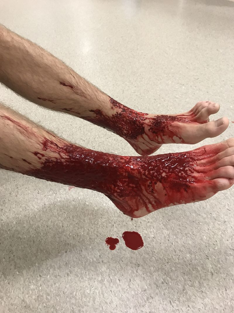 Sam Kanizay's feet started to bleed after he walked out of the beach. (AAP)