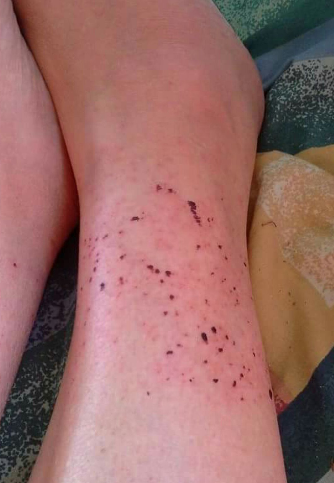 """""""It was like tiny pin holes everywhere in my legs,"""" Ms Shrimpton said. (Supplied)"""