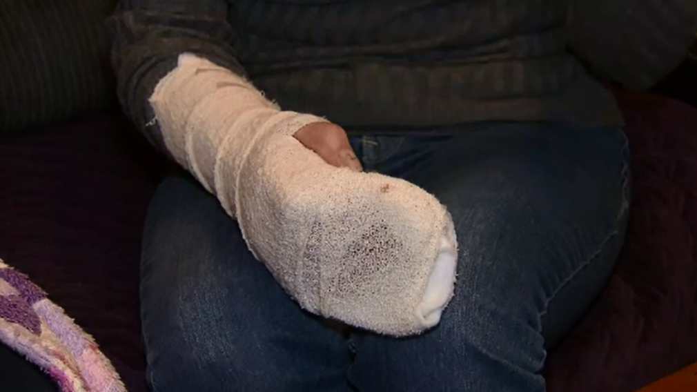 The wife's hand was broken during the attach but she still fought the offenders away from her daughters. (9NEWS)