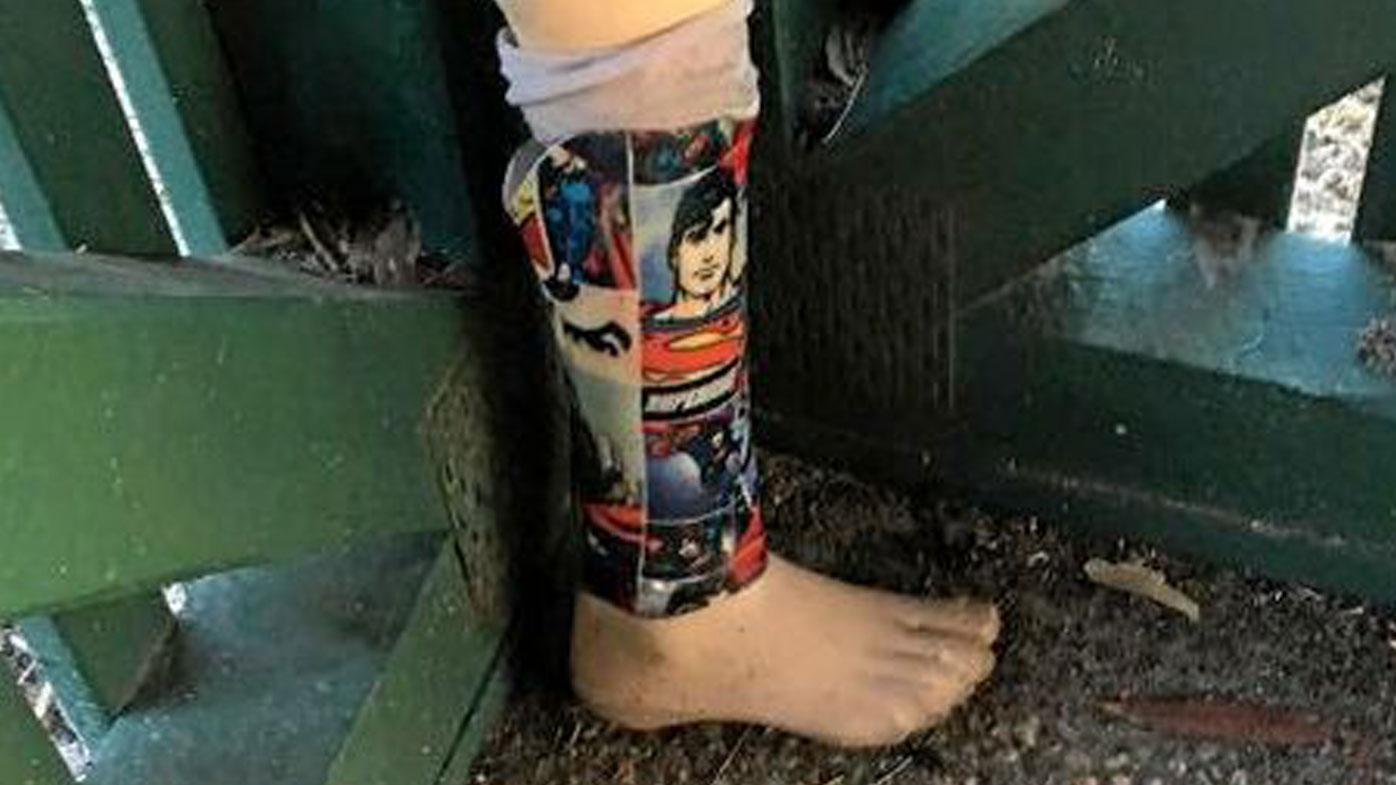 Woman reunites three-year-old boy with Superman prosthetic leg