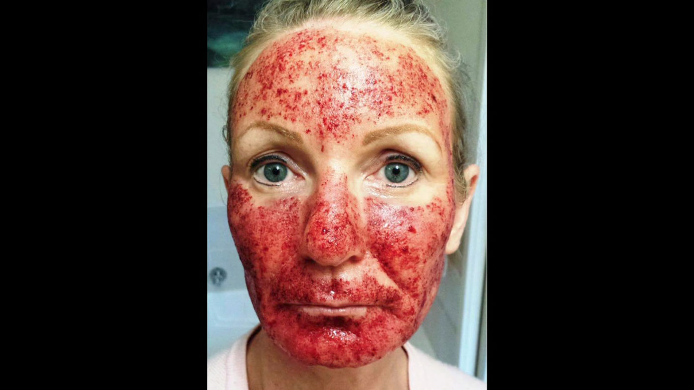 Niki Richardson claims she had a bad treatment at a salon.