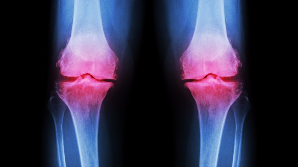 There are approximately three million sufferers of osteoarthritis in Australia.