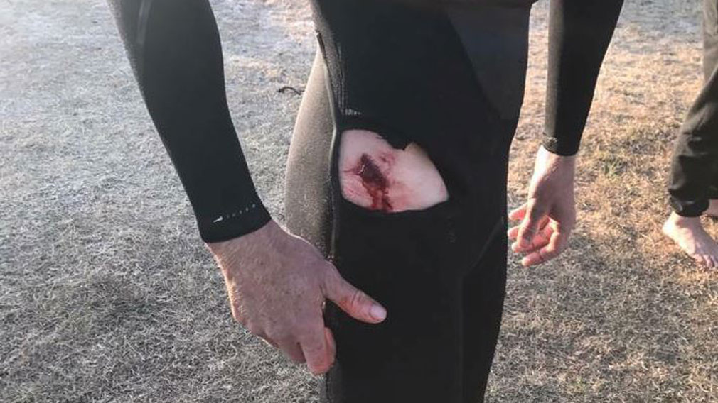 Surfer says great white shark attacked him at Iluka Beach in NSW