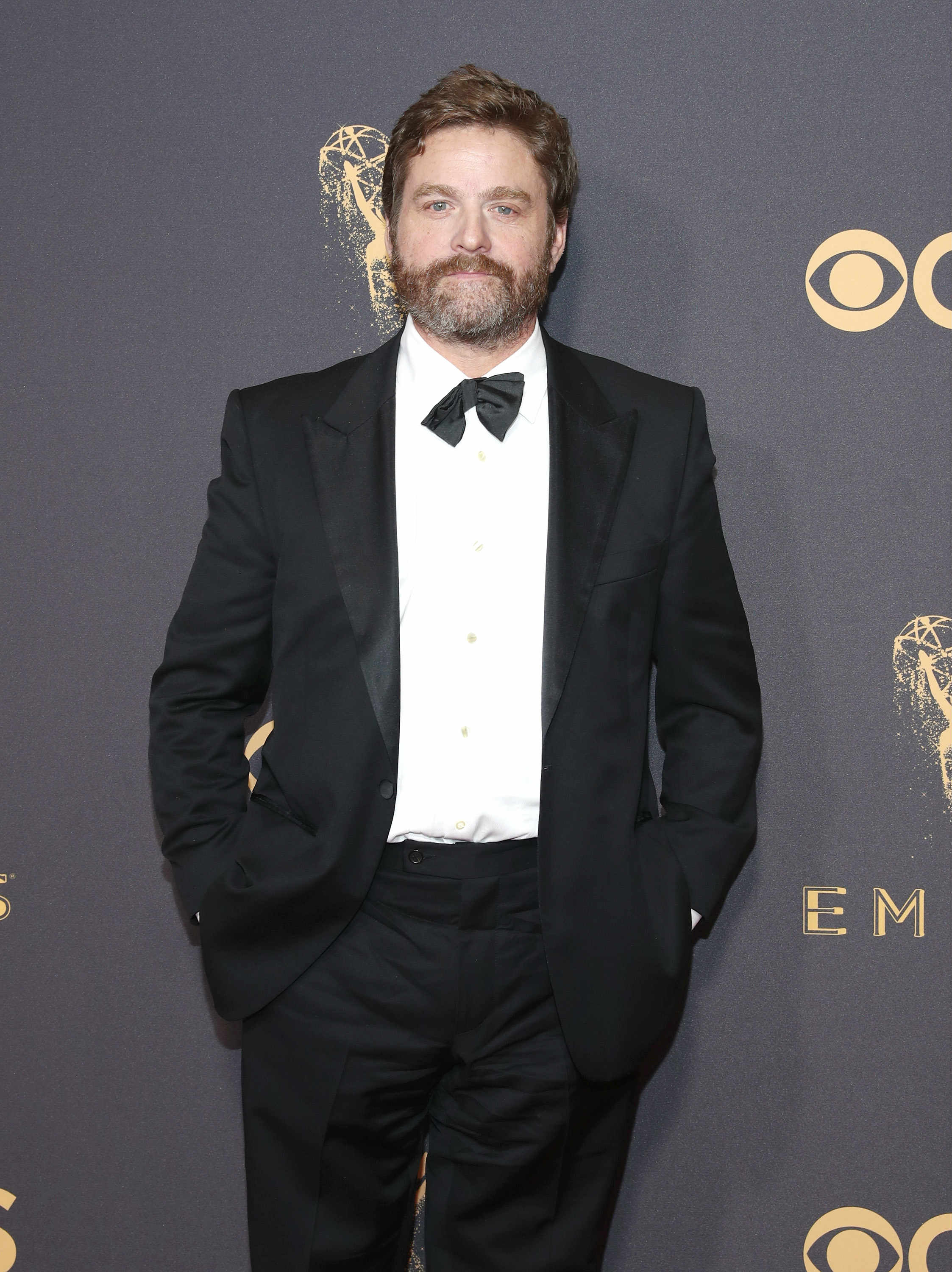 The Hangover star Zach Galifianakis debuts major weight loss: See the photo!