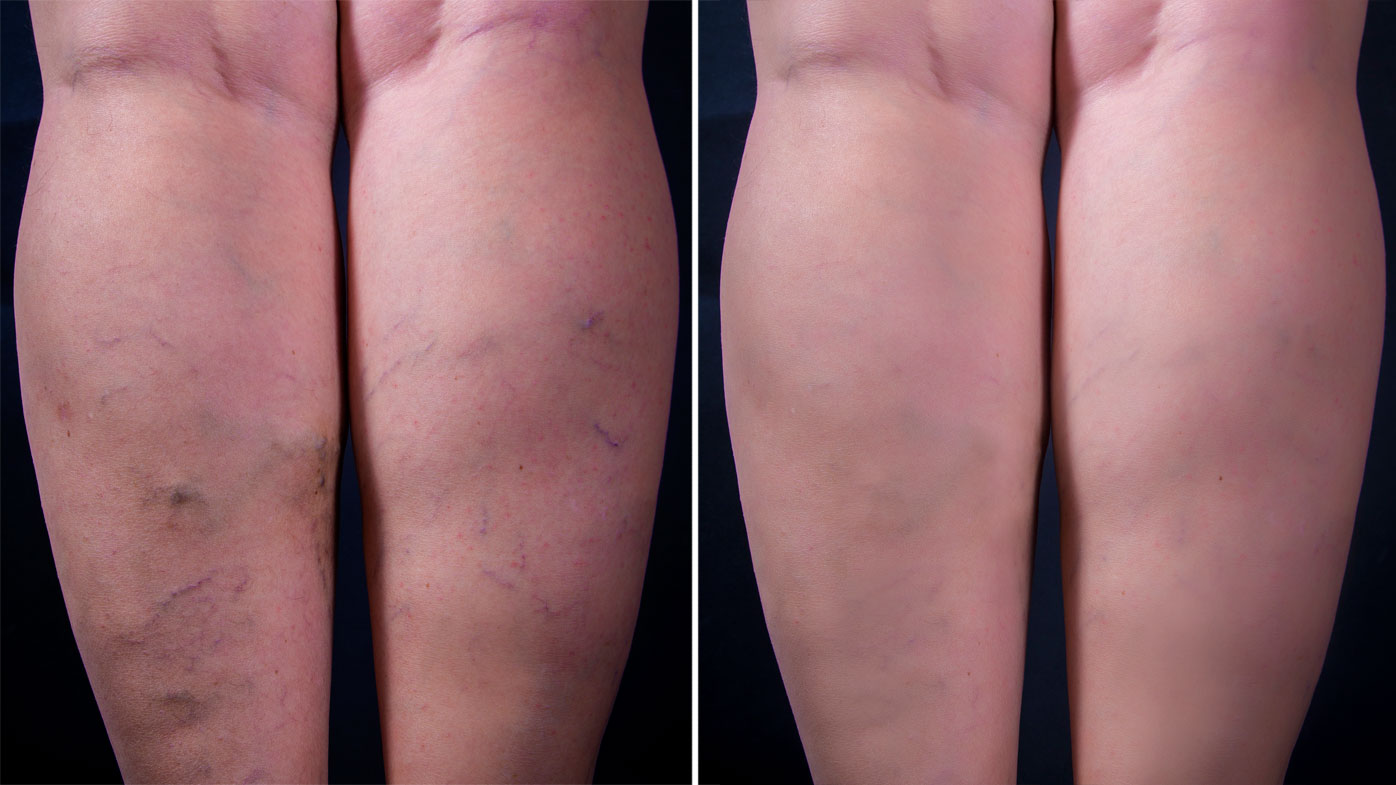 varicose veins Find out why you get varicose veins in your feet, what they may mean for your health, and what you can do to prevent them.