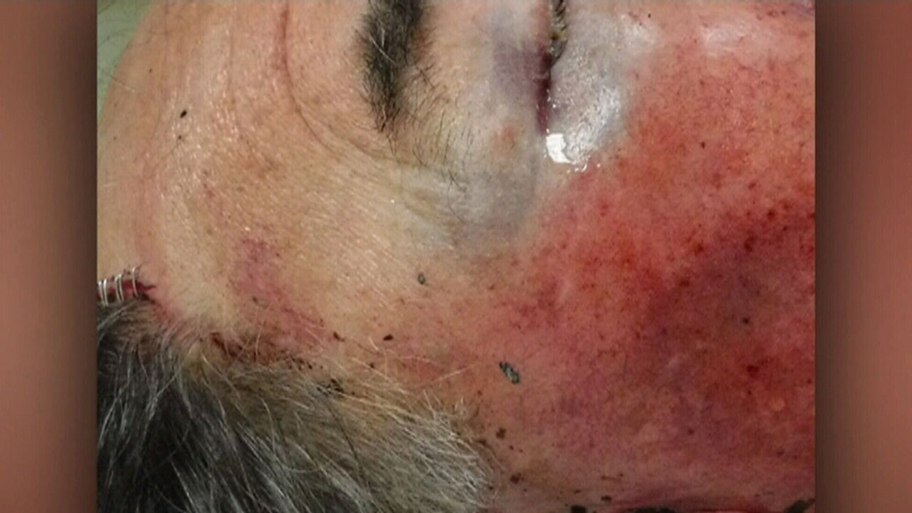 Police hunting attacker who bashed Perth grandparents