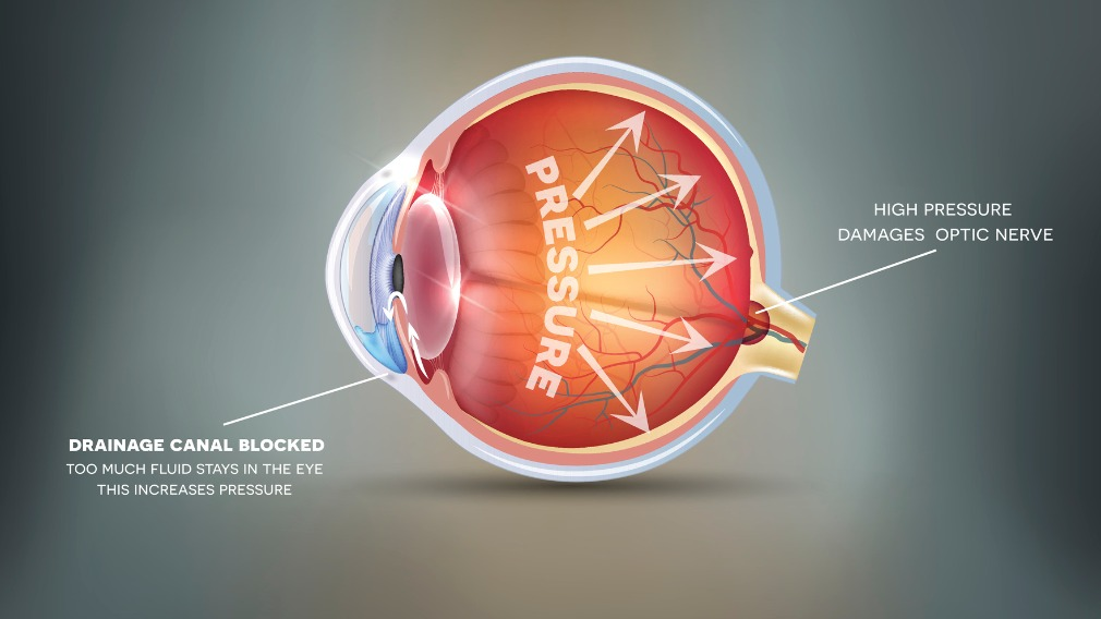 Common vitamin could halt glaucoma