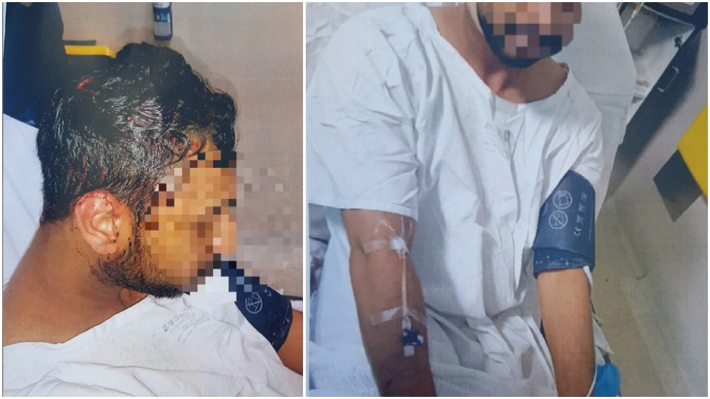 Uni student tasered, bashed in 'horrendous' night-time ambush