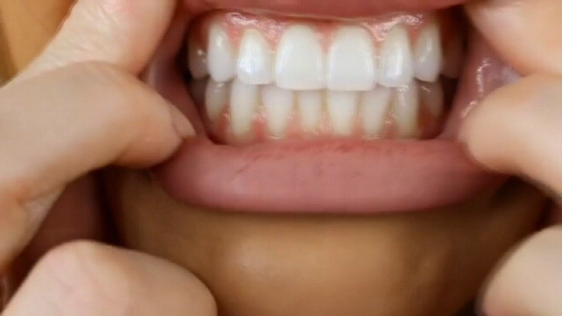 Global Teeth Whitening Products Market Analyze By Top Leading Companies Like GlaxoSmithKline, Colgate-Palmolive, Henkel, Johnson & Johnson, CCA Industries, Unilever, Church & Dwight, Brodie & Stone, Procter & Gamble and GO SMILE.
