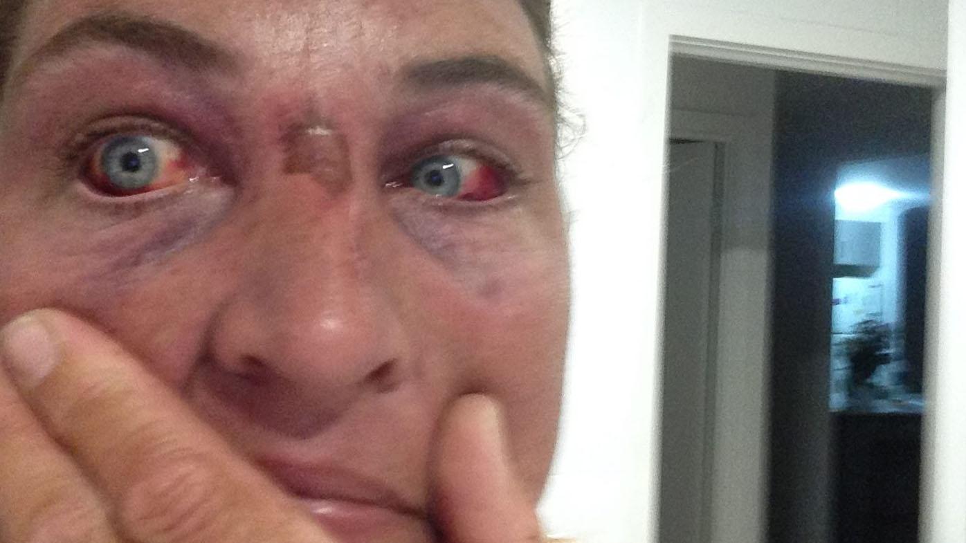 Queensland snake catcher strangled by python
