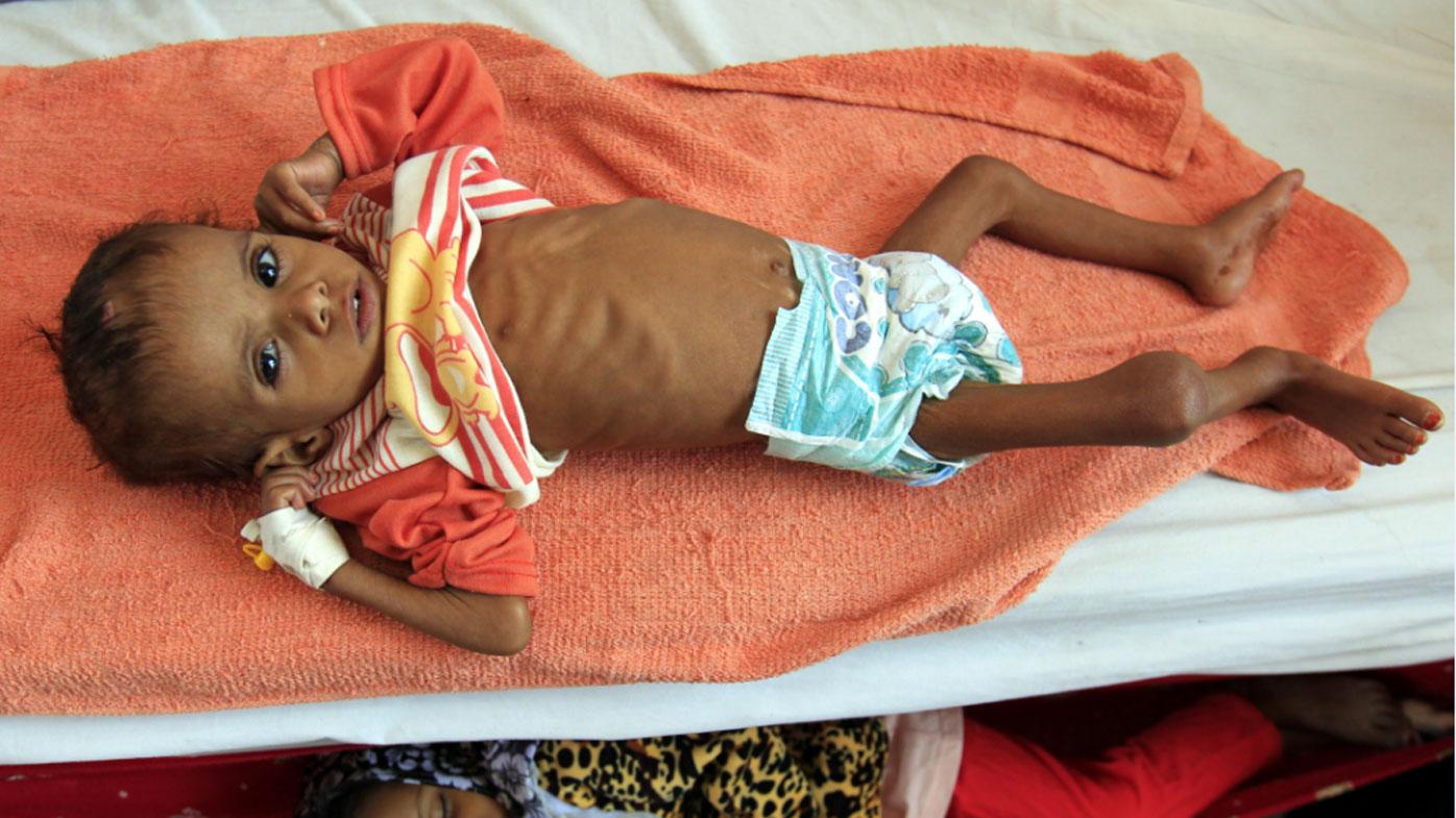 Millions face starvation in Yemen