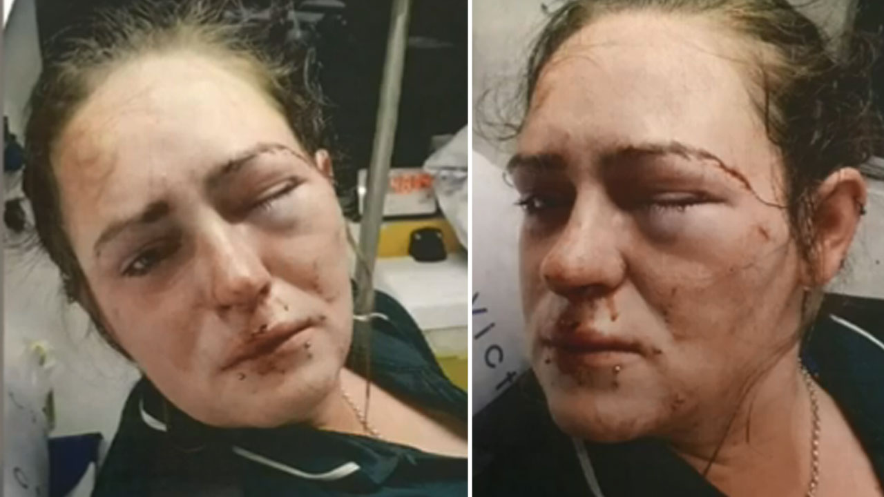 Paramedic beaten with deodorant can in 'road rage' attack