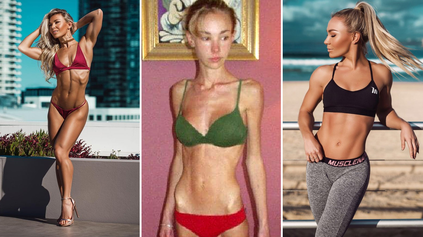How Sydney fitness model recovered from deadly anorexia