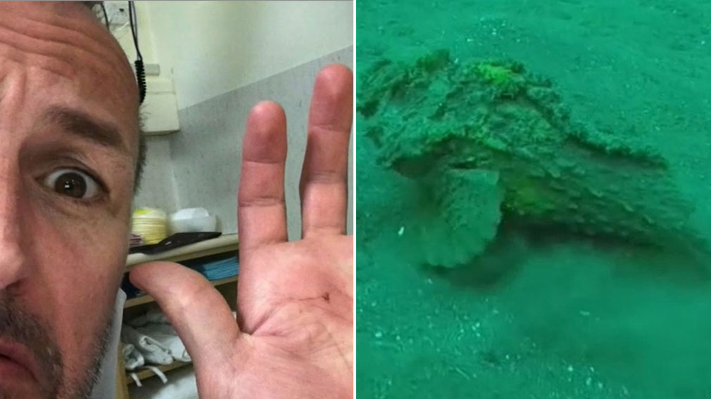 Perth news: Swimmers survive stings from stonefish while at city beaches