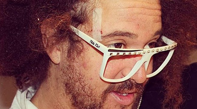 The aftermath... Redfoo sporting a cut after a Sydney pub glassing. (supplied)