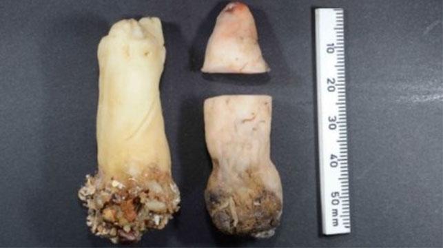 Museum finally solves 'severed finger' mystery