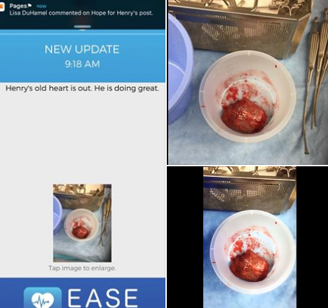 Photos and videos of Henry's natural heart, minutes after it has been removed from his body. Source: Facebook