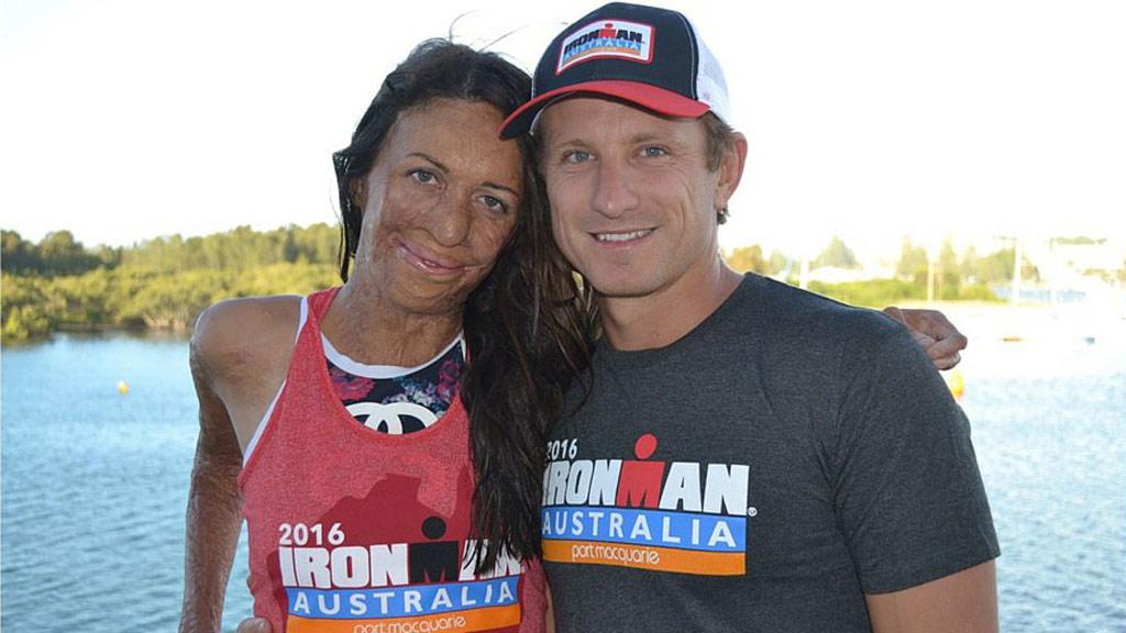 Burns victim Turia Pitt competes in Ironman Triathlon